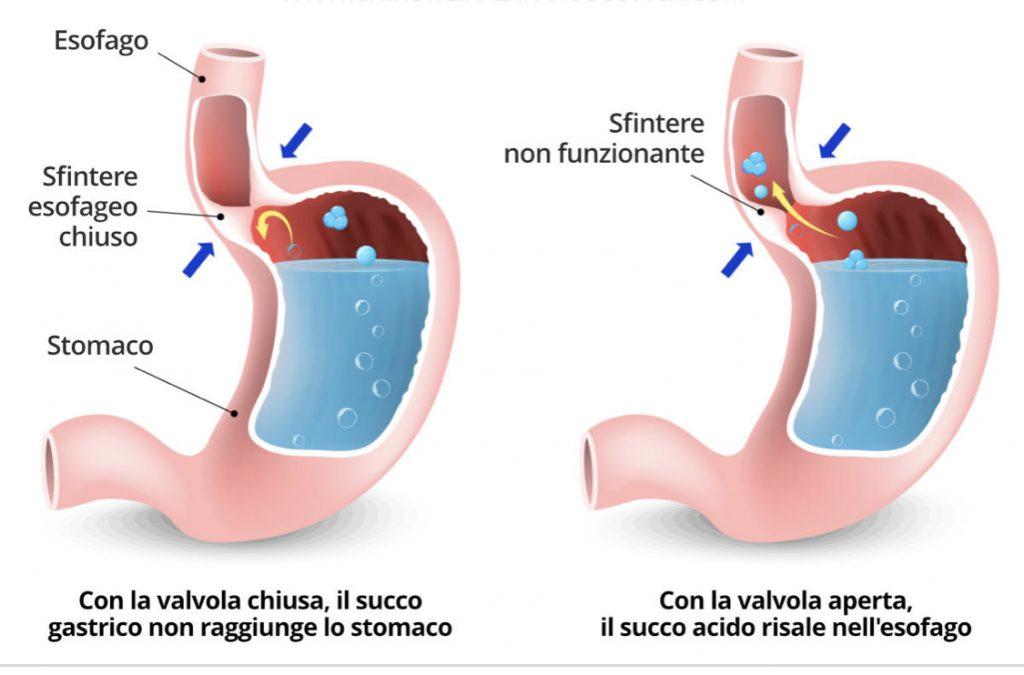 simonetta-alibrandi-osteopata-sfintere-esofageo-non-funzionante-reflusso