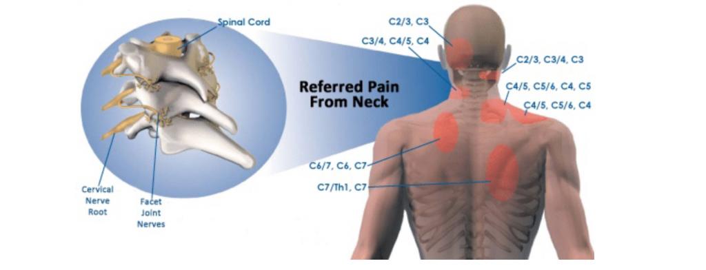 osteopata simonetta alibrandi cause della cervicalgia e dolori riferiti