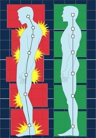 simonetta alibrandi osteopata modifiche della postura corretta e sbagliata