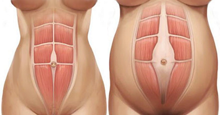 simonetta alibrandi osteopata posturologo roma mal di schiena ernia protrusione postura corretta colonna vertebrale lombosciatalgie I muscoli addominali diastasi dei retti esercizi per il core