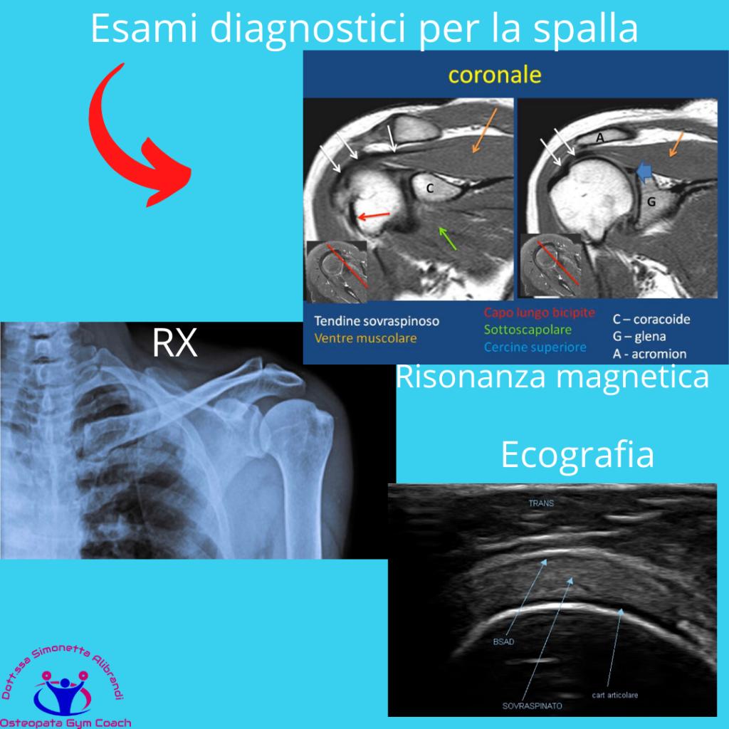 simonetta-alibrandi-osteopata-roma-posturologo-personal-trainer-dolore-alla-spalla-tendinite-lesione-al-sovraspinato-lesione-cuffia-dei-rotatori-tendinopatia-RM-ecografia-RX