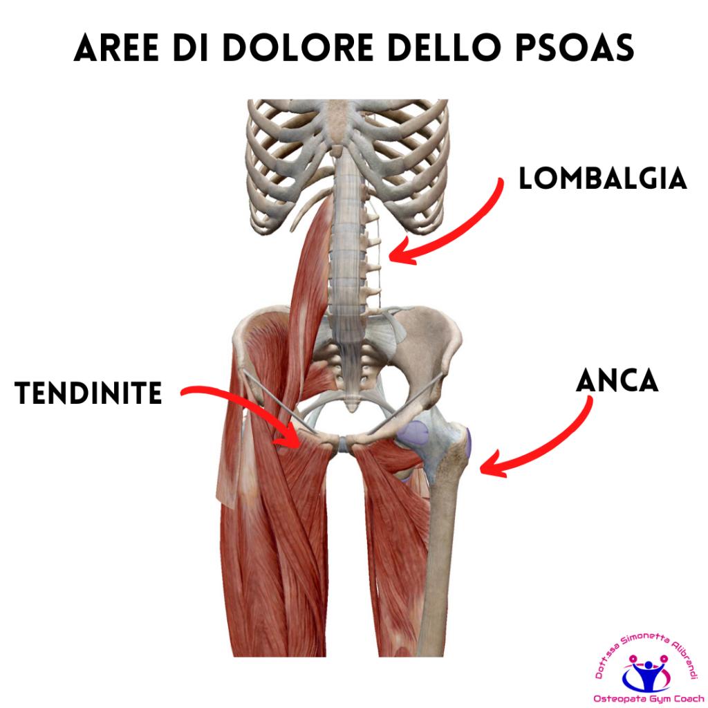 simonetta-alibrandi-osteopata-posturologo-personal-trainer-dolore-allinguine-sintomi-rimedi-esercizi-lombalgia-tendinite-adduttori-ileopsoas-Anca